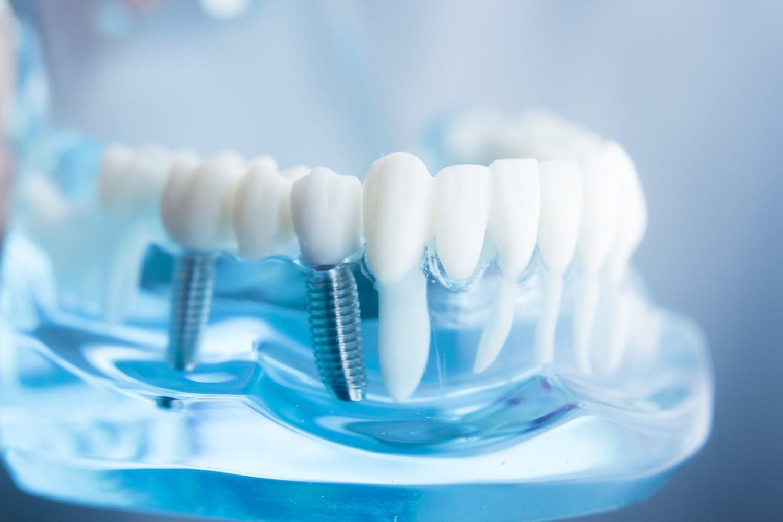 dr Hagege implantologie tenons parodontologie nice